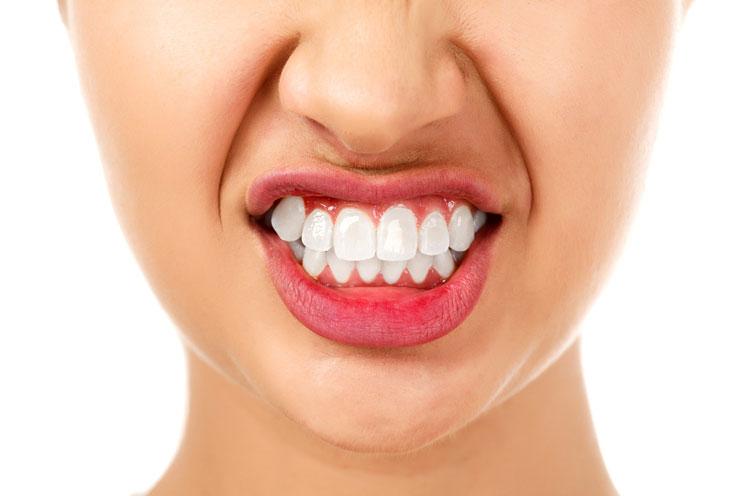 Patrulla mandíbula: Cómo dejar de rechinar los dientes durante la noche-MainPhoto