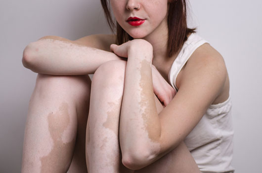 Living-and-Coping-with-Vitiligo-MainPhoto