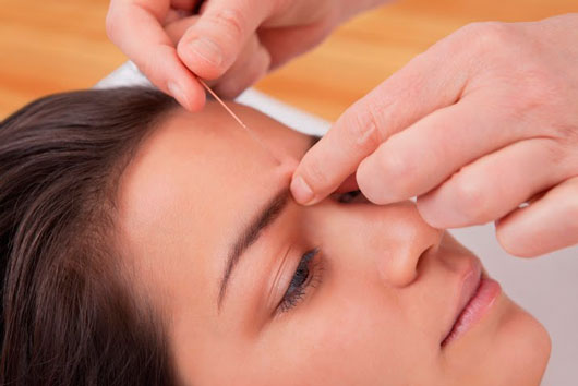 Why-Latinos-Should-Try-Acupuncture-MainPhoto