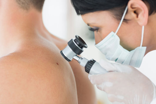 Is-That-Mole-Dangerous-The-Truth-About-Detecting-Skin-Cancer-Photo6