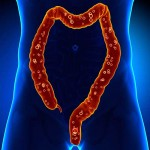 15-Reasons-why-Fecal-Transplants-are-Hot-Right-Now-MainPhoto