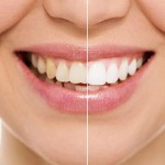 15-Things-to-Consider-Before-you-Whiten-your-Teeth-MainPhoto