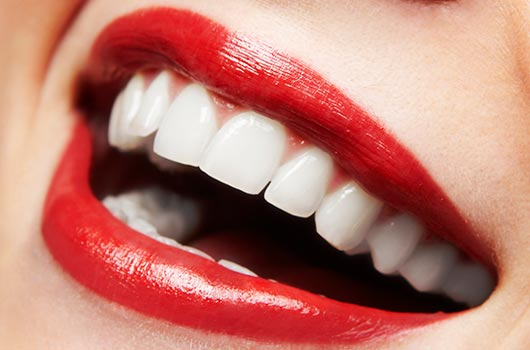 15-Things-to-Consider-Before-you-Whiten-your-Teeth-Photo15