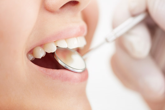 15-Things-to-Consider-Before-you-Whiten-your-Teeth-Photo5
