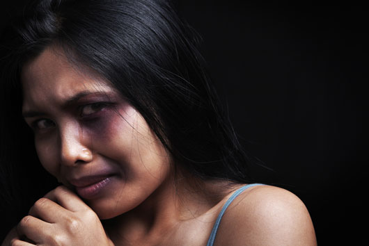 Crying-for-Help-15-Stories-About-Domestic-Abuse-that-Should-Never-Be-Forgotten-photo14