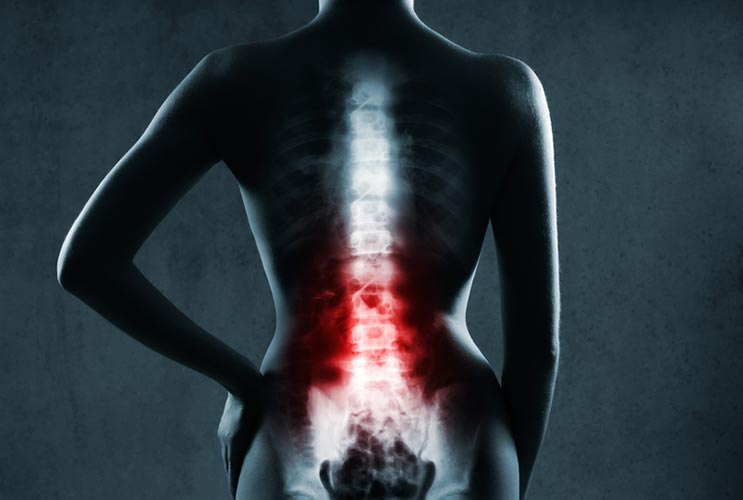 Back-Up-5-Ways-Your-Screwing-Up-Your-Spine-MainPhoto