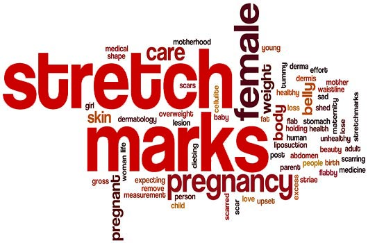 Fine-Lines-How-to-Make-Your-Stretch-Marks-Go-Away-MainPhoto