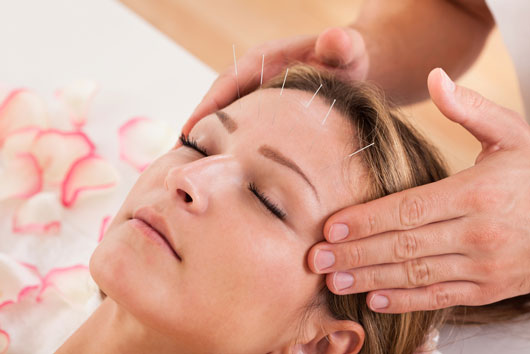 Acupuncture-for-Fertlity-Does-it-Work-Photo2