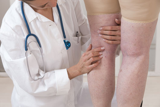 The-Truth-about-Treating-Spider-Veins-&-Varicose-Veins-Photo3