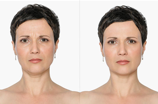Face-Off-How-to-Get-Rid-of-a-Double-Chin-MainPhoto