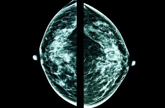 Breast of the Breast 30 Facts About Women and Breast Cancer We All Should Know Photo 3
