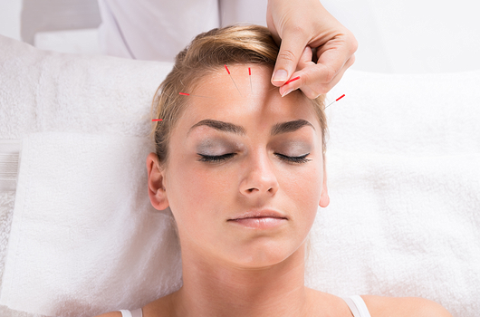 Head Case The 15 Best Ways to Find Relief from a Serious Migraine Photo 4